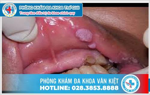 Phân biệt bệnh sùi mào gà ở miệng và bệnh nhiệt miệng - Phòng Khám Đa Khoa Văn Kiệt